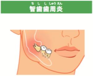 智歯歯周炎