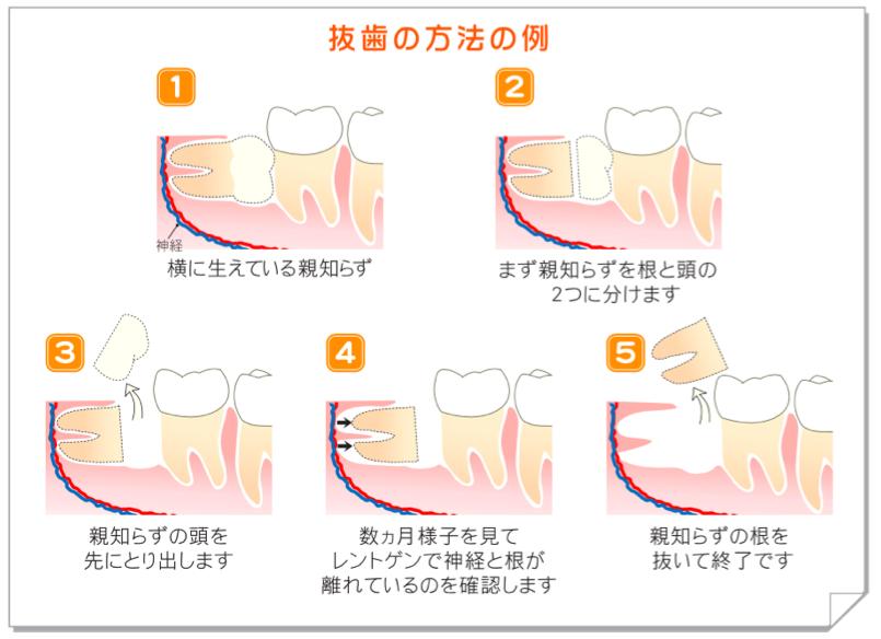 横に生えた親知らずの抜歯(2回法)