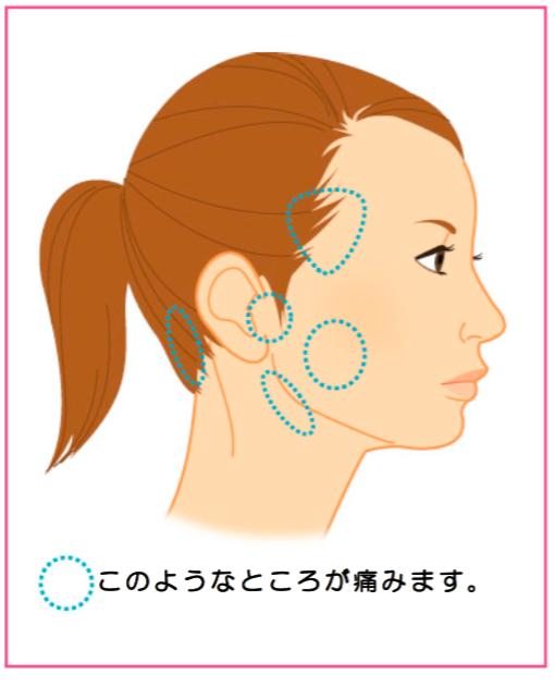 あごが痛くて動かすと音がする/顎関節症 | いわきり歯科 ...