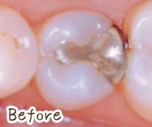奥歯の銀歯 セラミック前